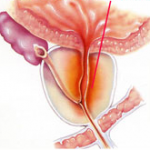 klachten prostaatontsteking
